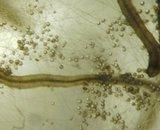 Numerosas esporas y micelio extra-radical (GX5)